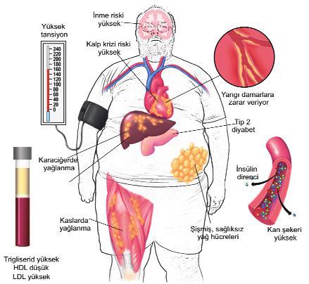 Metabolik Sendroma ile ilgili görsel sonucu
